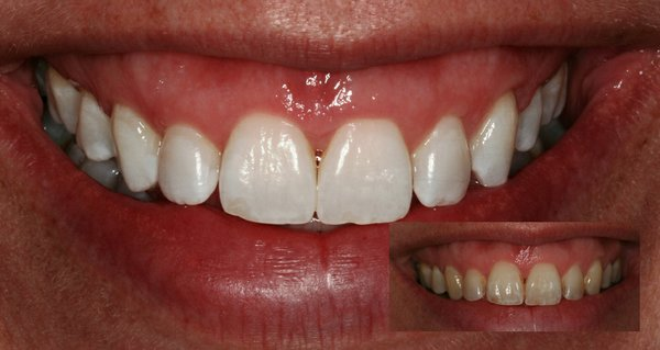 whitening before after.jpg